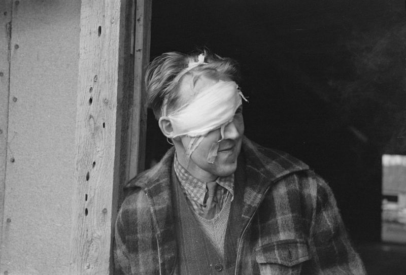 Lumberjack with bandaged head after being beaten up and rolled in a saloon on Saturday night in Craigsville, Minnesota
